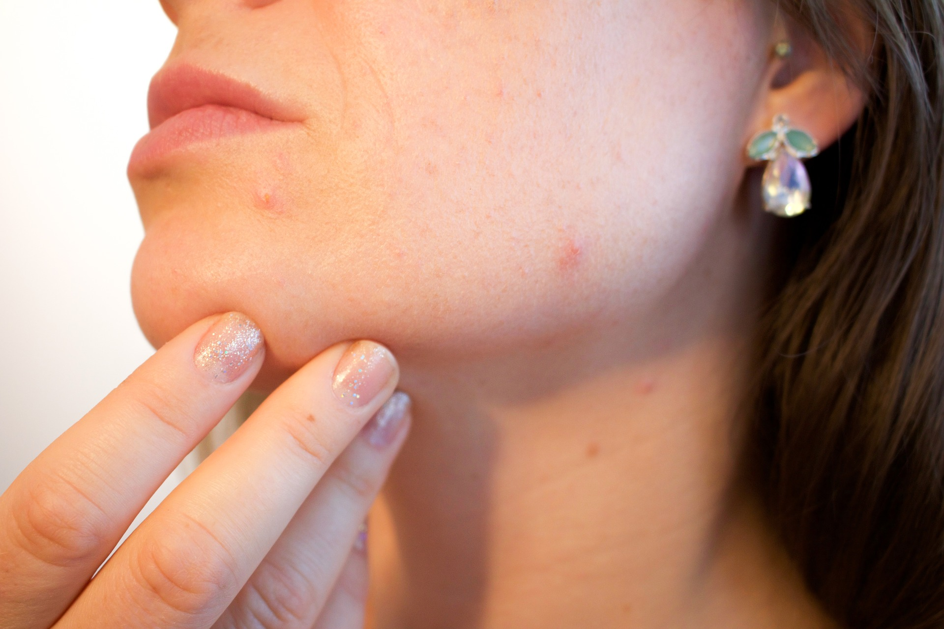 Do you get pimples very often? Here's what the location of your acne is telling about your health