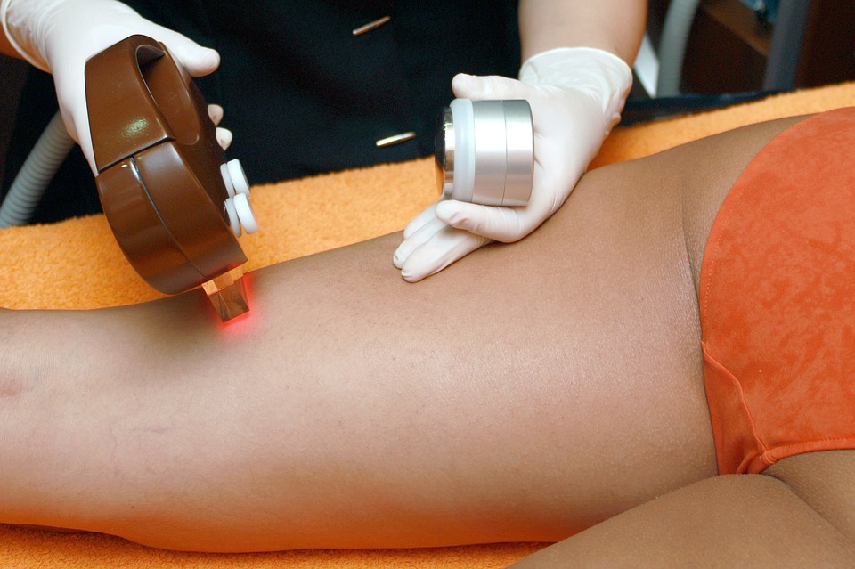 Considering a laser hair removal? THESE are the side effects you should know about