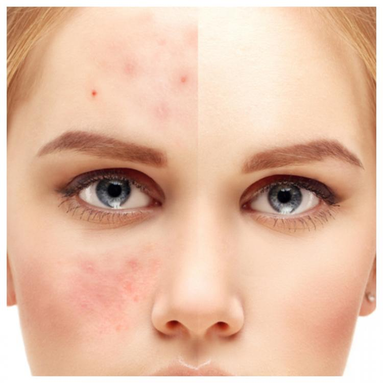 Do's and Don'ts to take care of your acne prone skin, explained by dermatologist, Dr Ajay Rana