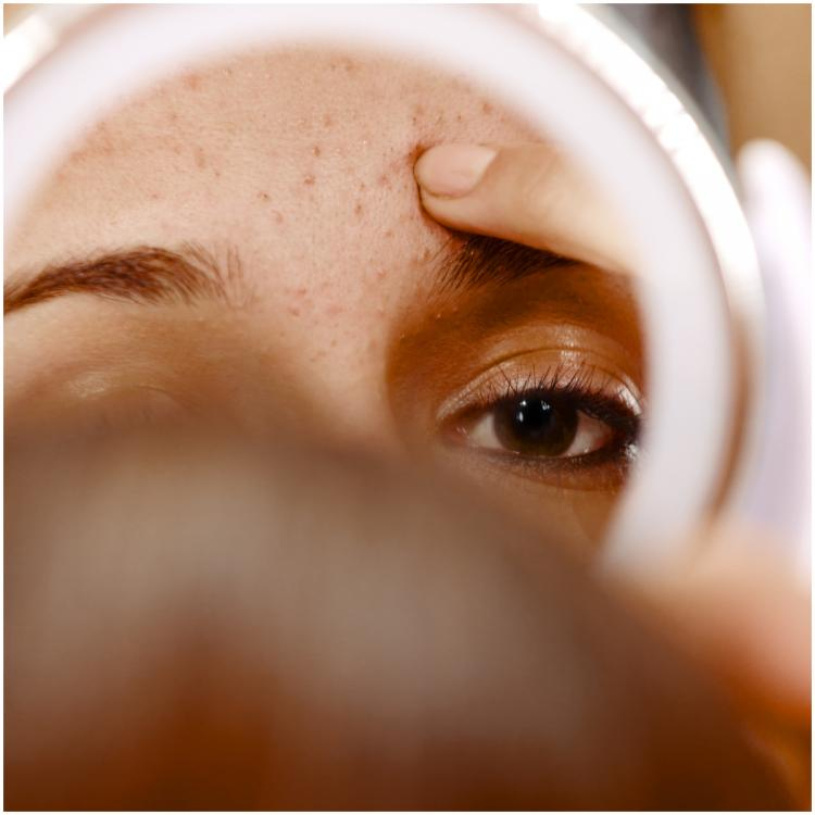 What is congested skin and how you can prevent it from turning into acne?