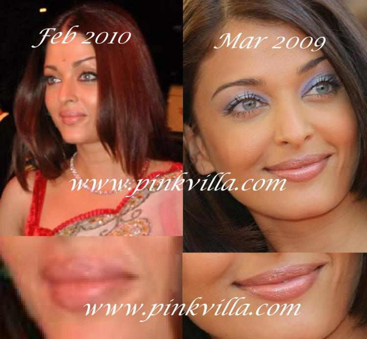 Discussion,plastic surgery,aishwarya rai