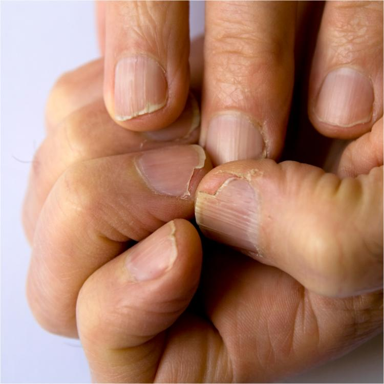 Do your nails constantly break? 5 EASY tips to get healthier nails and avoid chipping edges