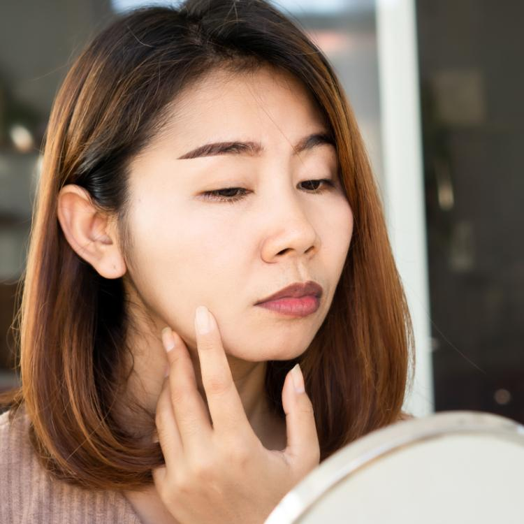Wrinkles Causes and treatments