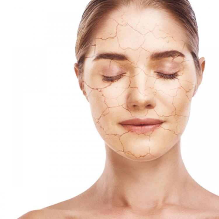 Skincare: 8 beauty tips to get rid of dry and flaky skin