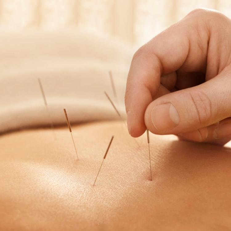 Health & Fitness,Acupuncture,Healing Technique,Natural Therapy