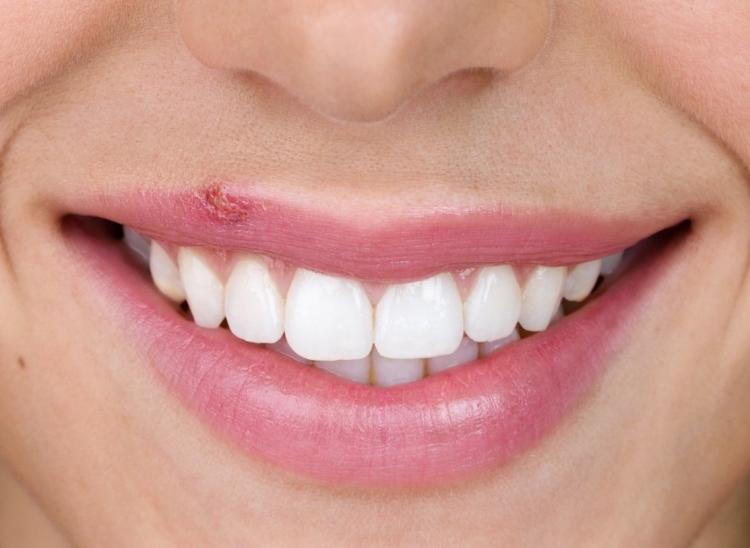 Home Remedies for Cold Sores: THESE natural ingredients can provide relief from this problem