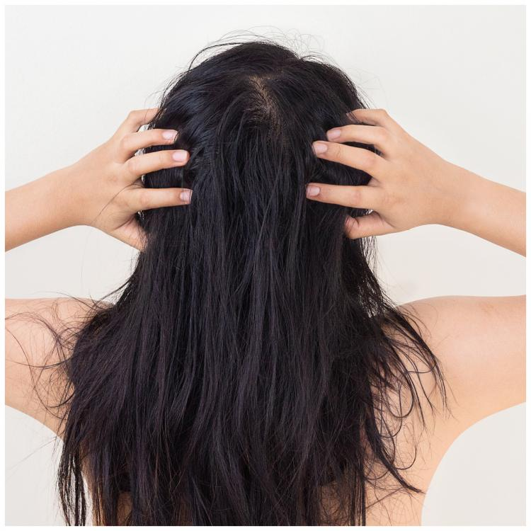 2 Easy home remedies to deal with an itchy scalp this monsoon season