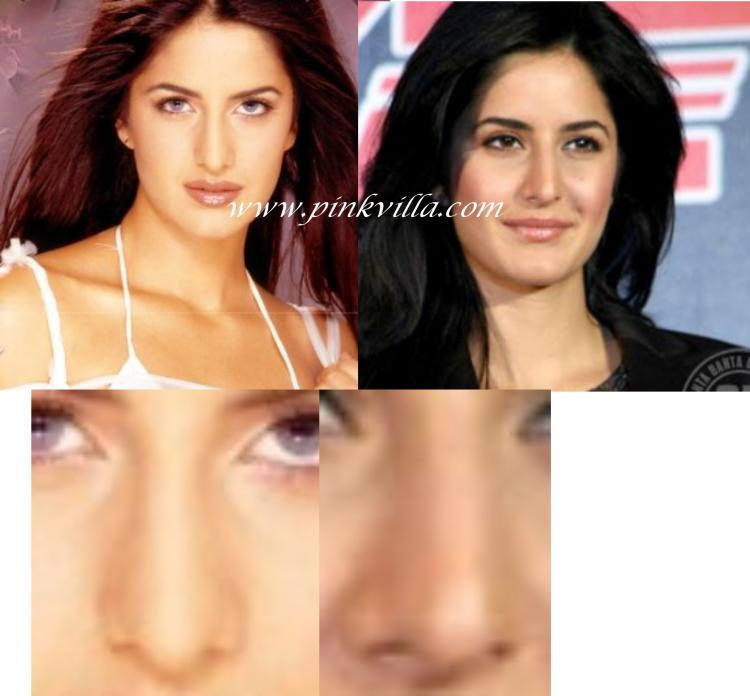 Discussion,Katrina Kaif,plastic surgery