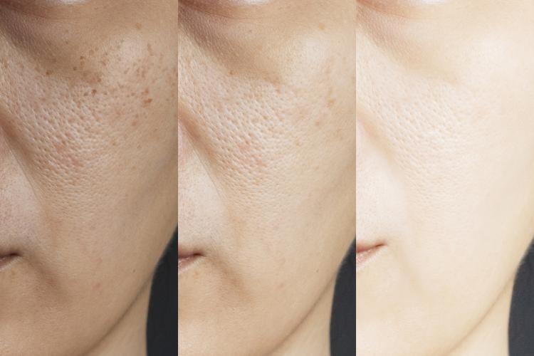 Skin care: 3 hassle free and easy ways to shrink pores seamlessly