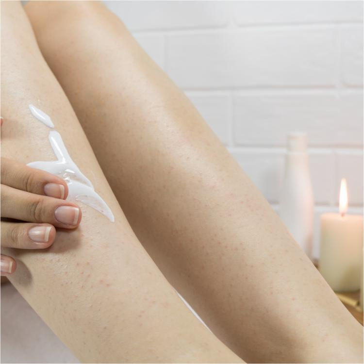 3 Easy ways to deal with keratosis pilaris aka chicken skin at home