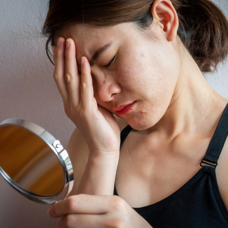 Skincare: 3 easy home remedies to calm IRRITATED skin and redness