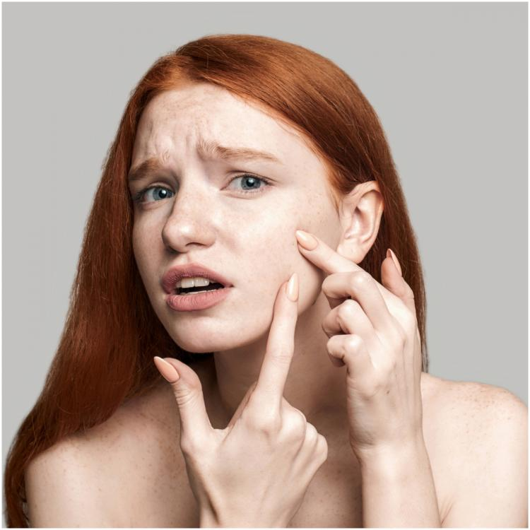 Skincare: SURPRISING reasons why you are facing adult acne and how to deal with it