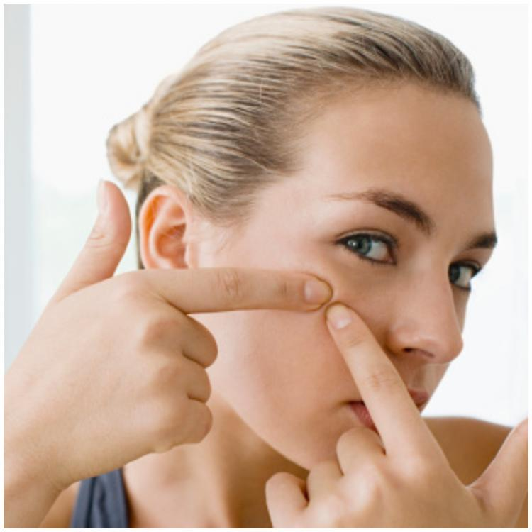 5 Effective home remedies to remove blackheads