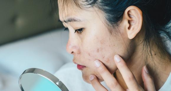Do you get pimples and zits by eating mangoes? Here's a dermatologist approved way to prevent and deal with it