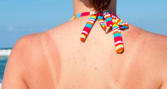 4 DIY remedies to REMOVE a patchy tan while at home during the lockdown