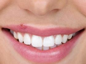 home remedies,Health & Fitness,natural treatment,cold sores