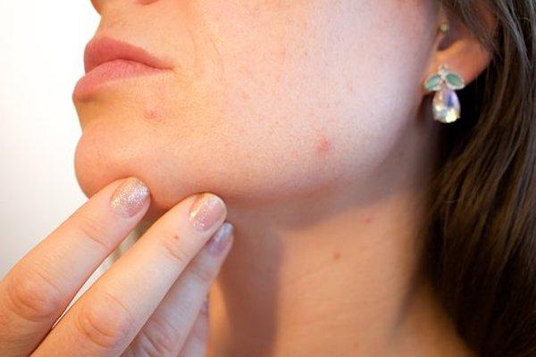 acne 1606765 340 1 - Skin Care: Here's how Coconut can do wonders for your skin