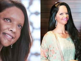 Laxmi Agarwal: 7 FACTS about the acid attack survivor that you may not know