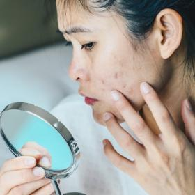 Beauty,skincare,Home Remedies,damaged skin