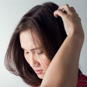 Beauty,Home Remedies,dandruff,itchy scalp