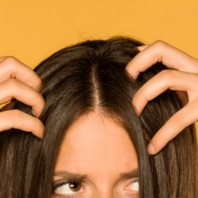 Beauty,remedies,hair problems,dandruff