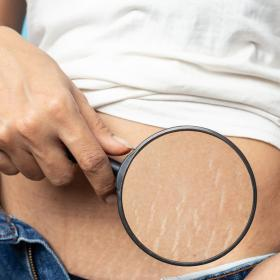 beauty,Beauty,Home Remedies,stretch marks