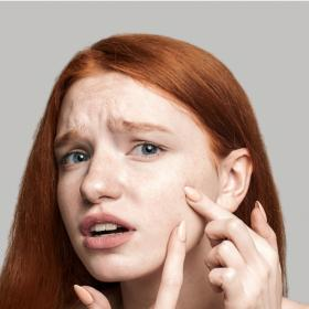 Beauty,Home Remedies,whiteheads,removal